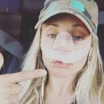 'General Hospital' News: Emme Rylan Out Of Surgery – Reveals Her Broken Nose Is On The Mend